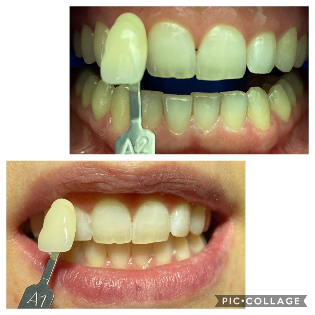Zahn-Bleaching vorher nachher Zahn-Bleaching in München A4 Zahnarztpraxis